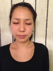肌トラブル/アンチエイジング/グリーンピール年間3500回以上の実績のある美肌専門サロン☆自由が丘のエステサロンミリーラボーテスタッフブログ
