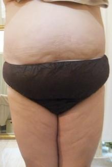 【驚きの結果写真!】太りやすいこの時期に痩せた秘訣とは?