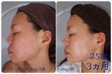 大人ニキビの原因、肌だけの問題ではありません。原因に合わせた改善策を探しましょう♪