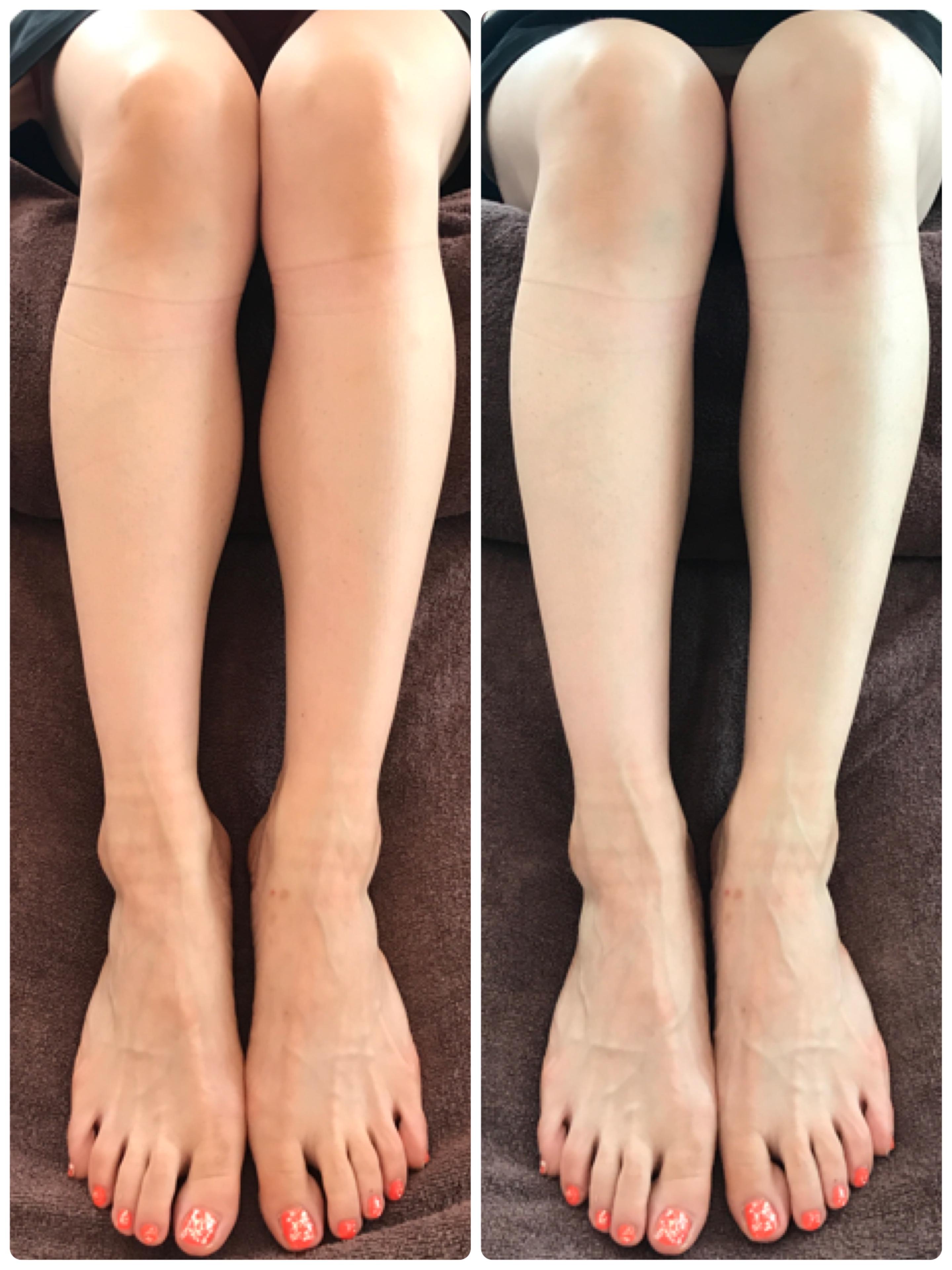 たった10分で施術後も足裏からポカポカ!〜冷え性・足のむくみ・硬く張った筋肉に〜